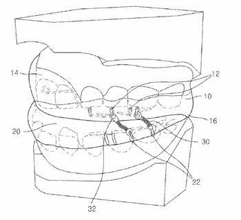 Oral device for treating sleep disordered breathing disorders