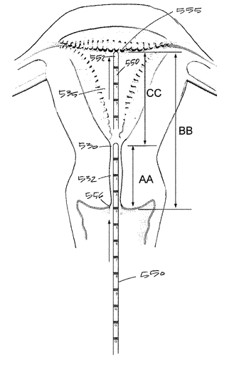 Systems and methods for endometrial ablation