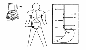 Device for monitoring the function of sphincters in the gastrointestinal tract and method of use
