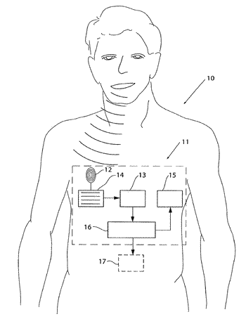 System for voice control of a medical implant