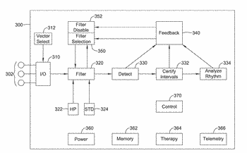 Automatic determination and selection of filtering in a cardiac rhythm management device