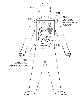 Wearable cardioverter defibrillator (wcd) system with isolated patient parameter component