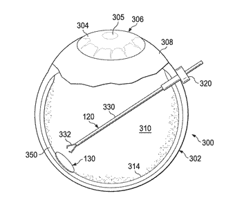Patch for sealing retinal breaks and associated devices, systems, and methods