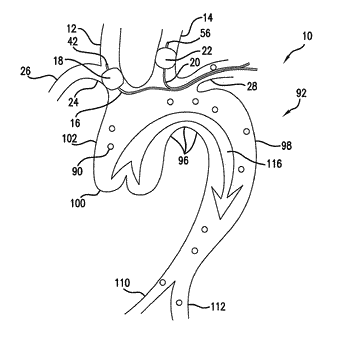 Carotid artery occluding apparatus with first and second occluding balloons