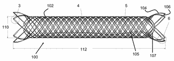 Stent and stent delivery device