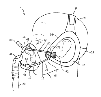 Patient interface assembly with self-adjusting anchor points