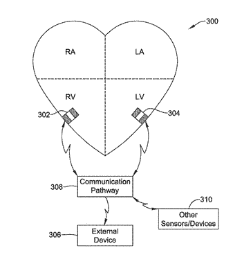 Conducted communication in a medical device system