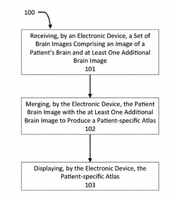 Method for a brain region location and shape prediction