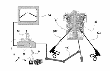 Device and method for assisting laparoscopic surgery utilizing a touch screen