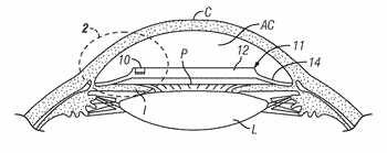Implantable devices and methods for measuring intraocular, subconjunctival or subdermal pressure and/or analyte concentration