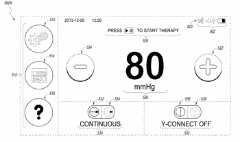 Leak detection in negative pressure wound therapy system