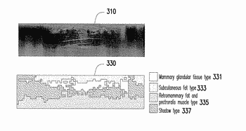 Medical image processing apparatus and breast image processing method thereof