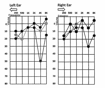 A method and device for modifying audio signals based on hearing capabilities of the listener