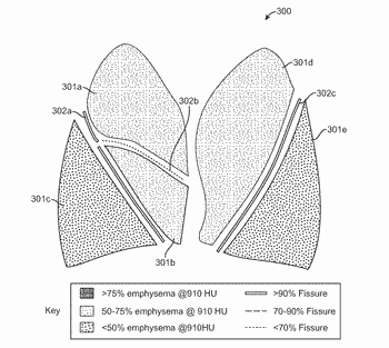 Methods, systems, and devices for analyzing lung imaging data