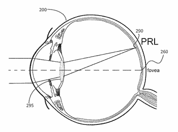 Dual-optic intraocular lens that improves overall vision where there is a local loss of retinal ...