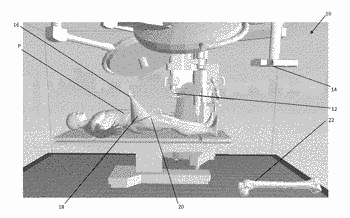System and process for ultrasonic determination of long bone orientation