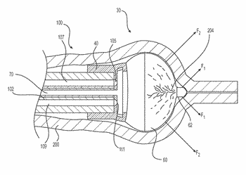 Gastrointestinal endoscopy with intestine pleating devices and methods