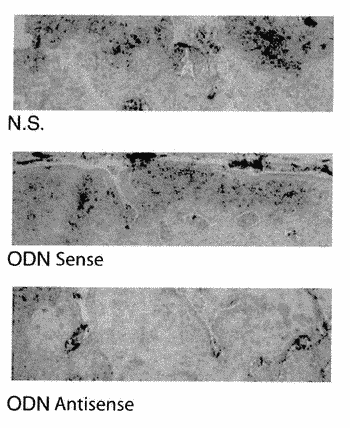 Antisense oligonucleotides (odn) against smad7 and uses thereof in medical field