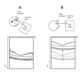 Method and system for motion artefacts removal in optical coherence tomography