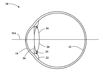 Intraocular lens and methods for providing accommodative vision