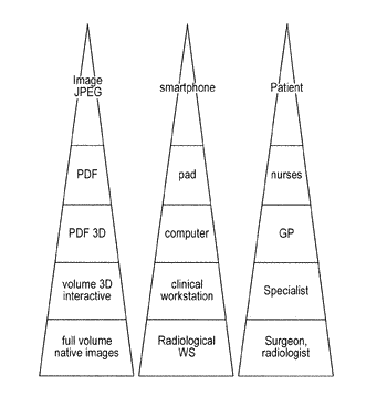 Method for automatically generating representations of imaging data and interactive visual imaging reports (ivir)