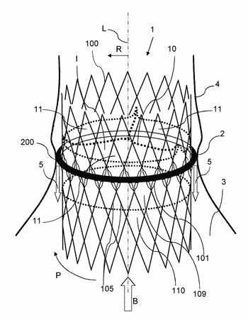 Expandable annulus sealing ring for stented minimally invasive heart valve prostheses