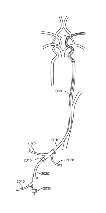 Methods and systems for treatment of acute ischemic stroke