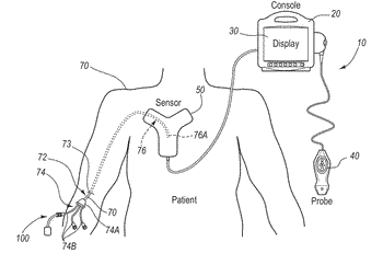 Integrated system for intravascular placement of a catheter
