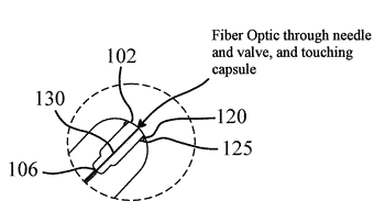 System for detecting an intragastric balloon