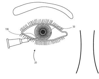 Single operator device for delivering an ocular implant