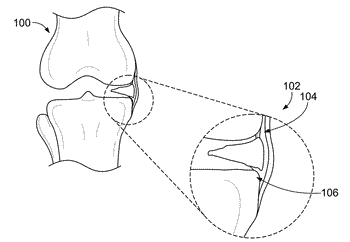 Knee joint capsular disruption and repair