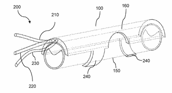 A system and method for treating artery