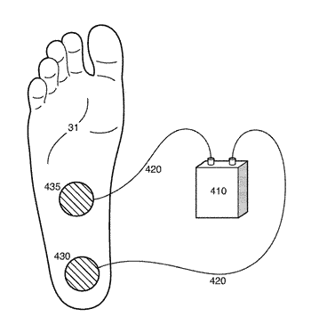 Programmable electrical stimulation of the foot muscles
