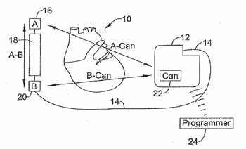 Sensing vector selection in a cardiac stimulus device with postural assessment