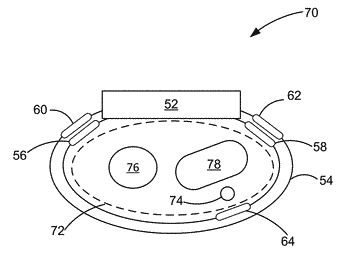 Blood pressure monitoring using a multi-function wrist-worn device