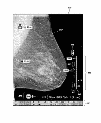 Displaying computer-aided detection information with associated breast tomosynthesis image information