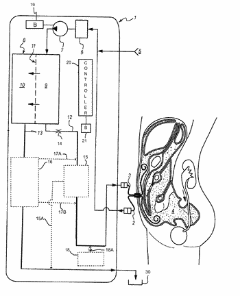 Filtration system and process for peritoneal dialysis