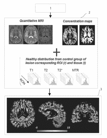 Apparatus and method for visualizing tissue macro- and microstructure for pathology evaluation in magnetic resonance ...