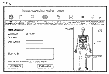 Software for use with deformity correction