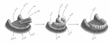 Simplified protocol for fixed implant restorations using intra-oral scanning and dental cad/cam