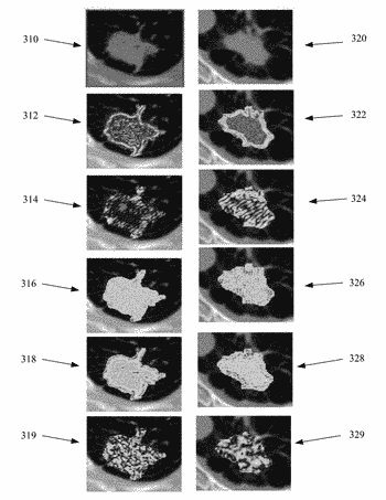 Computerized analysis of computed tomography (ct) imagery to quantify tumor infiltrating lymphocytes (tils) in non-small ...