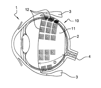 Device and method for prosthetic rehabilitation of the retina