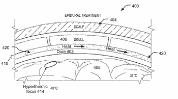 Thermally conductive graft