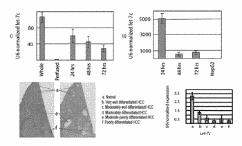 Generation of uniform hepatocytes from human embryonic stem cells by inhibiting tgf-beta and methods of ...