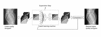 Transforming projection data in tomography by means of machine learning
