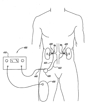 Methods and apparatus for multi-vessel renal neuromodulation