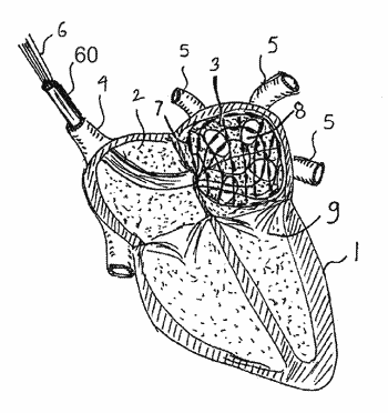 Apparatus and method for intra-cardiac mapping and ablation