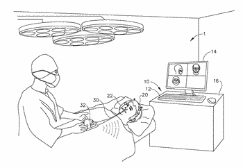 Suction device for use in image-guided sinus medical procedure