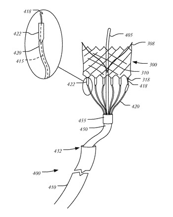 Transapical mitral valve replacement