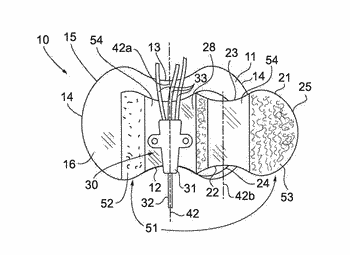 Offset catheter securement device with removable retention member